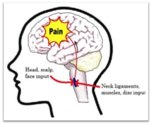 Headaches, Migraines and Pilates